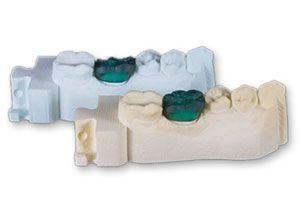 Зубной протез напечатанный VisiJet PerlStone