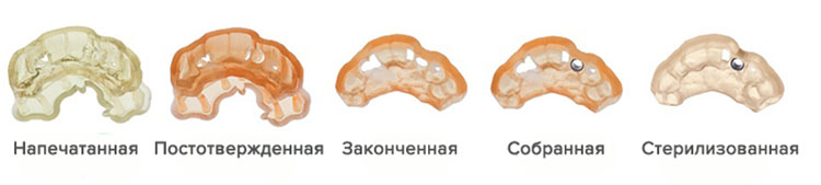 пример печати фотополимером в стоматологии