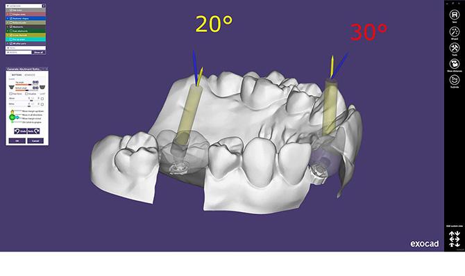 Модуль Exocad Implant
